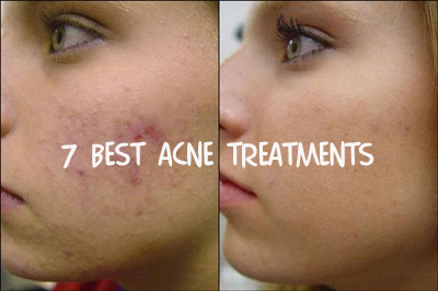 7-best-acne-treatments