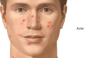what-is-acne