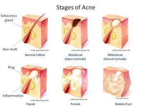 causes-of-acne